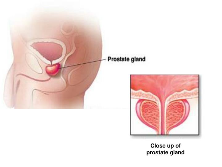 PPT - Prostate Health PowerPoint Presentation - ID:6877688