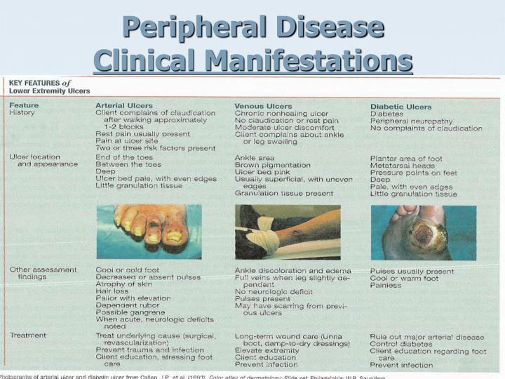Peripheral Disease