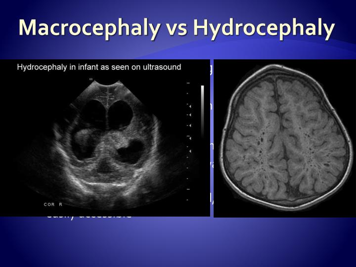 Macrocephaly