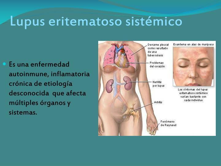 Lupus eritematoso sist mico1
