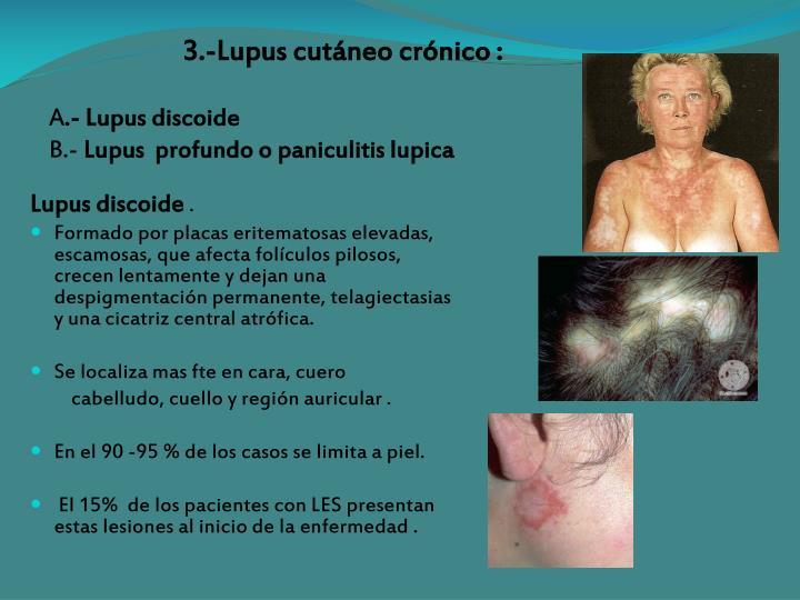 3.-Lupus cutáneo crónico :