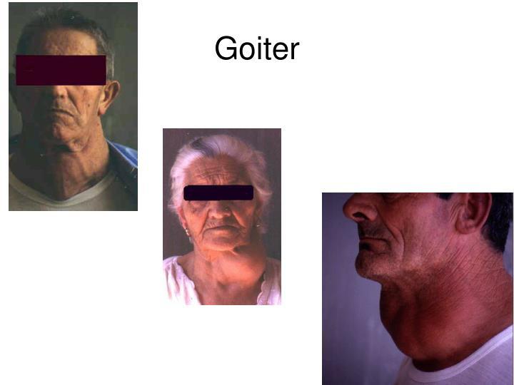Goiter