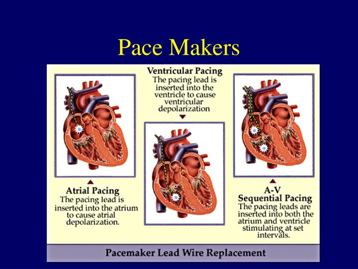 Pace Makers