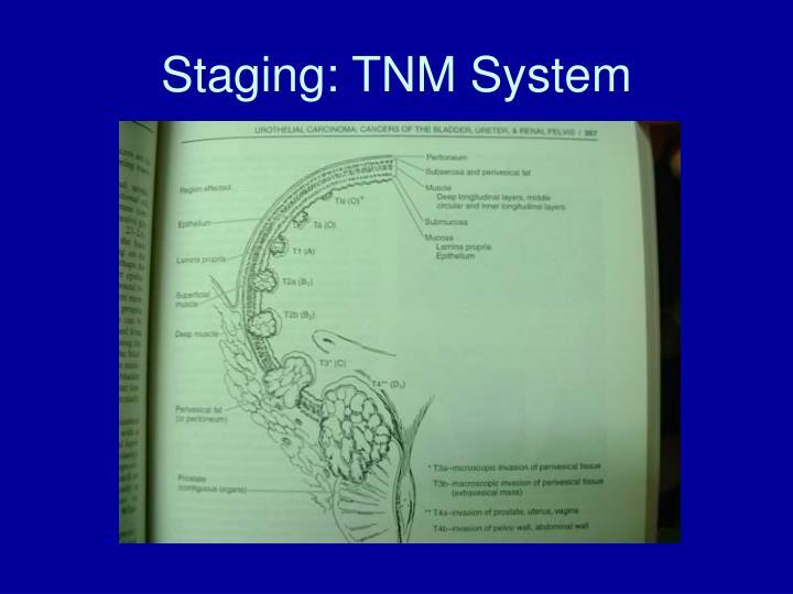 Staging: TNM System