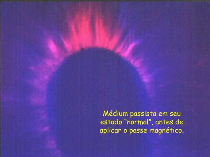 """Médium passista em seu estado """"normal"""", antes de aplicar o passe magnético."""