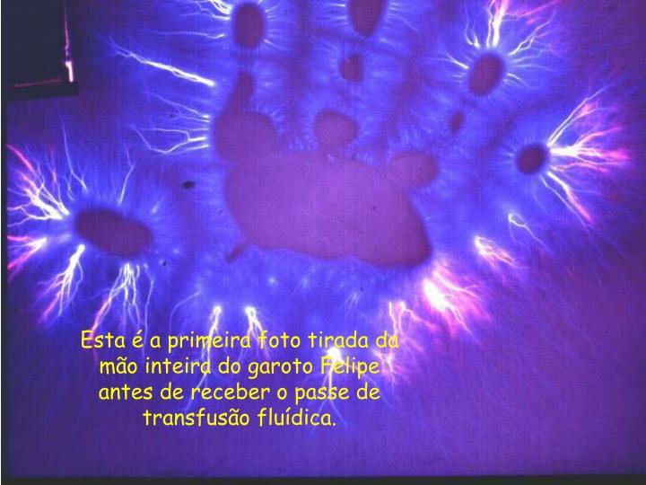 Esta é a primeira foto tirada da mão inteira do garoto Felipe antes de receber o passe de transfusão fluídica.