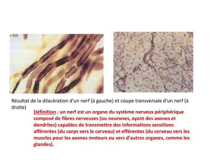 Résultat de la dilacération d'un nerf (à gauche) et coupe transversale d'un nerf (à droite)
