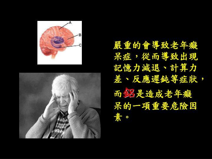 嚴重的會導致老年癡呆症,從而導致出現記憶力減退、計算力差、反應遲鈍等症狀,而