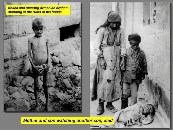 Naked and starving Armenian orphan
