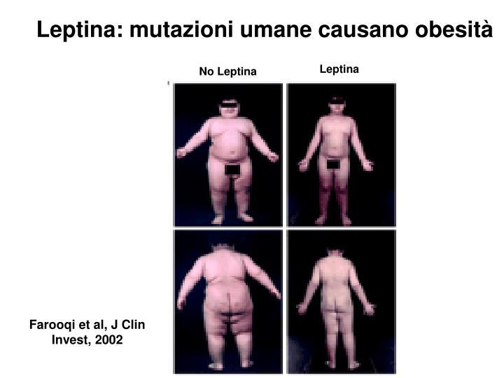 Leptina: mutazioni umane causano obesità