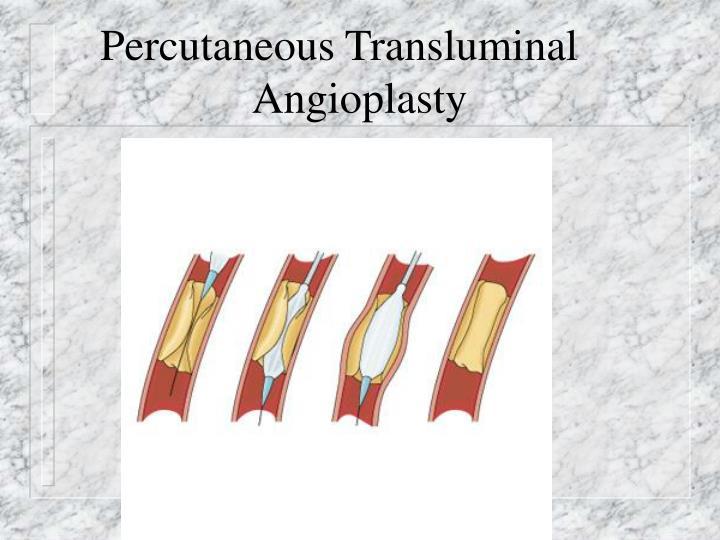 Percutaneous Transluminal
