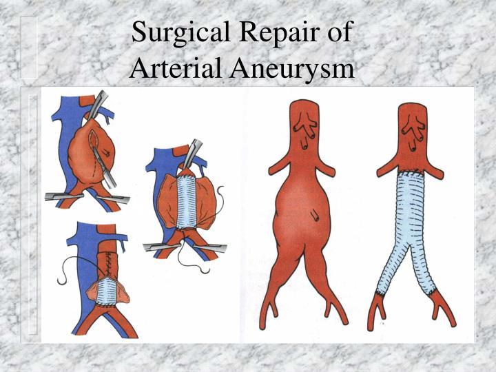 Surgical Repair of