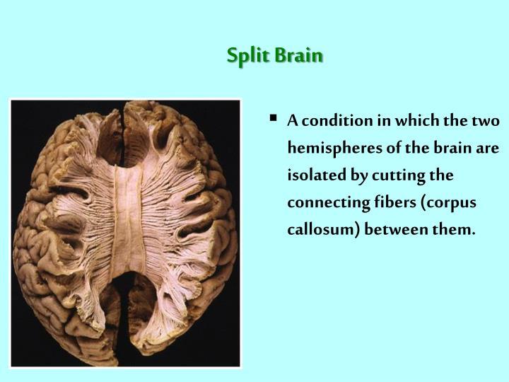 Split Brain
