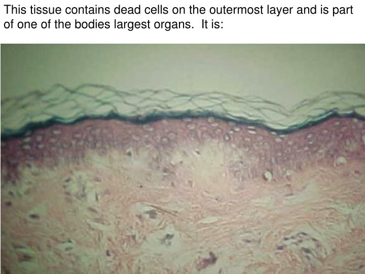 This tissue contains dead cells on the outermost layer and is part of one of the bodies largest organs.  It is: