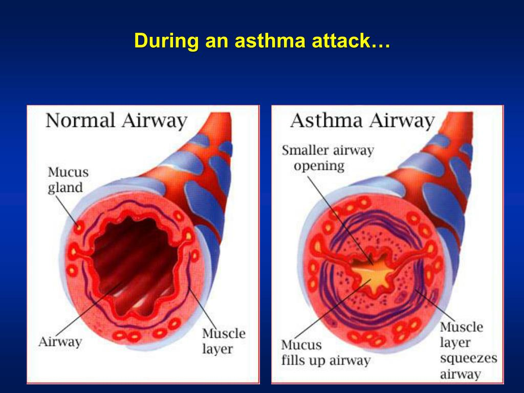 PPT - Bronchial Asthma Definition Patho-physiology ...