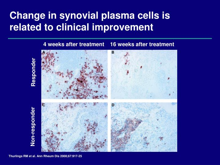 Change in synovial plasma cells is related to clinical improvement