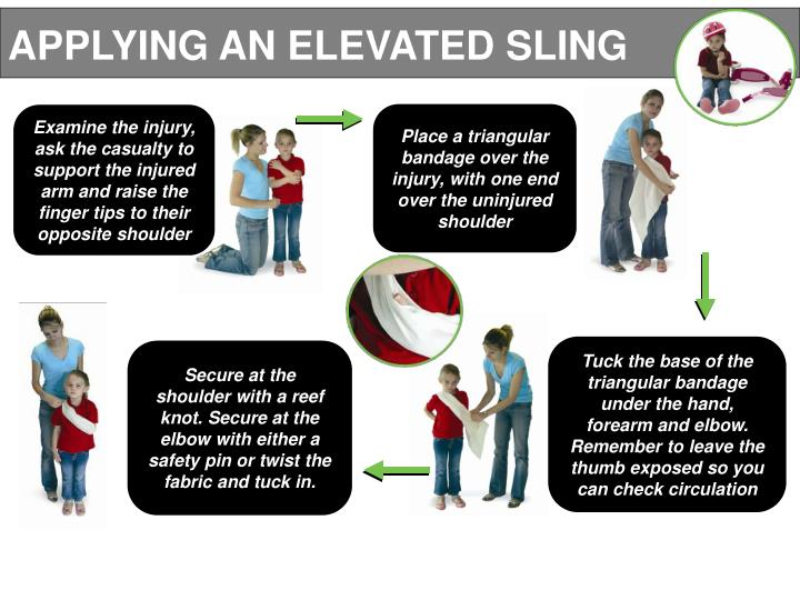APPLYING AN ELEVATED SLING