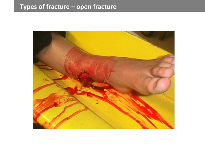 Types of fracture – open fracture