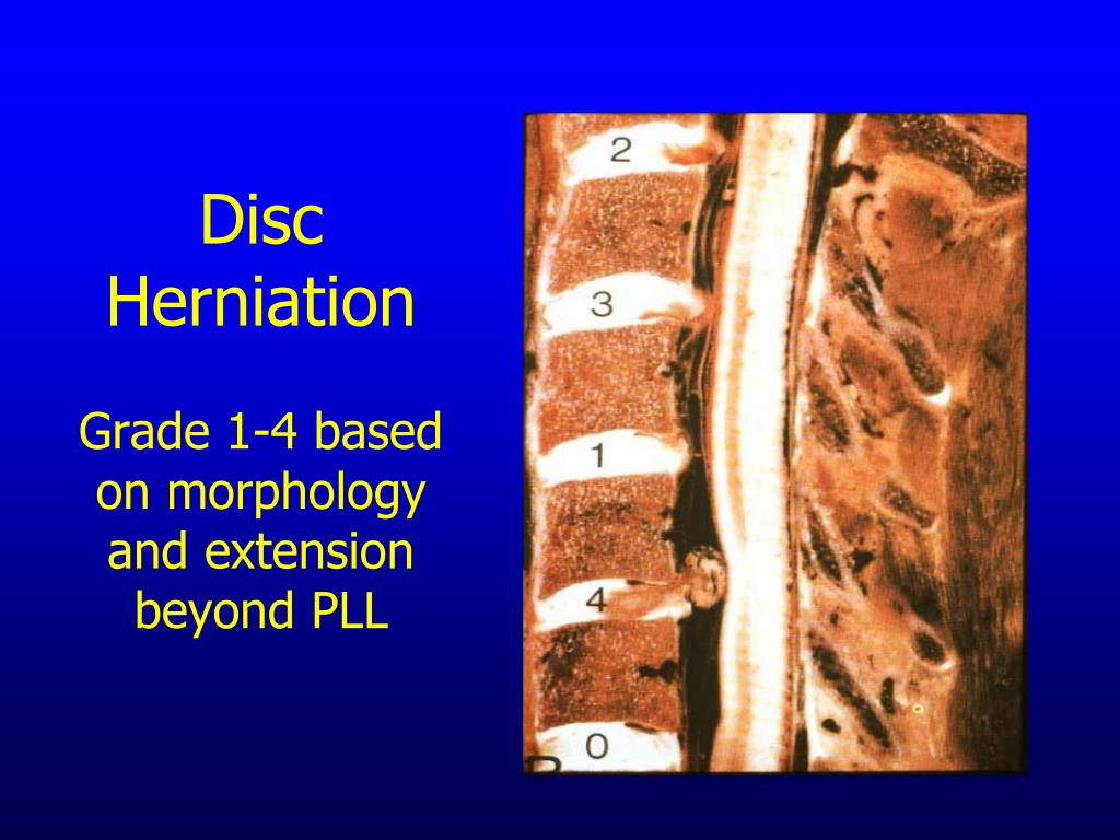 Ppt Nursing Care Of The Postoperative Spine Patient Care