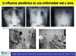 la influenza pand mica es una enfermedad real y seria