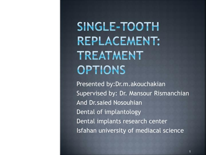 single tooth replacement treatment options n.