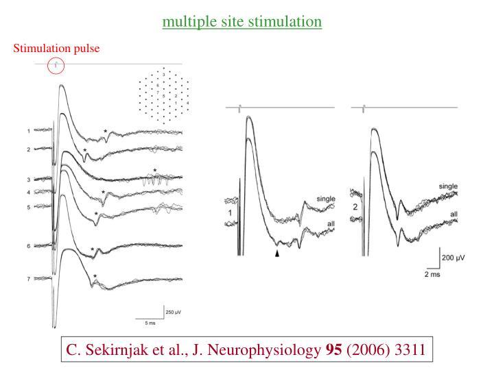 multiple site stimulation