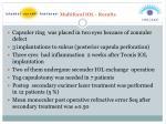 multifocal iol results