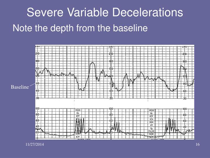 Variable Decelerations