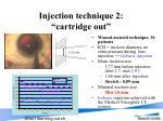 injection technique 2 cartridge out