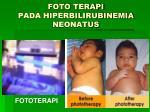 foto terapi pada hiperbilirubinemia neonatus