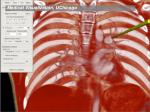 medical visualization uchicago
