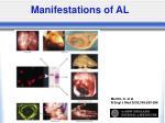 manifestations of al