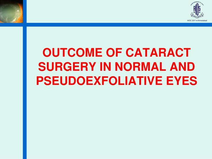 outcome of cataract surgery in normal and pseudoexfoliative eyes n.