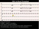 ekg in heart transplant