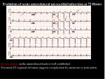 evolution of acute anterolateral myocardial infarction at 72 hours