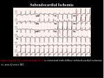 subendocardial ischemia