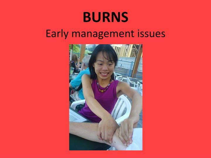 burns early management issues n.