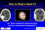 how to read a head ct