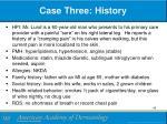 case three history