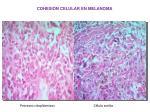 cohesi n celular en melanoma4