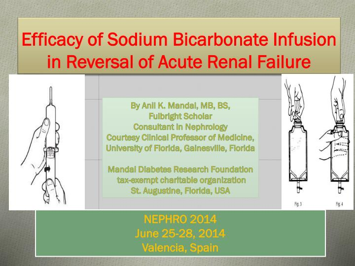 efficacy of sodium bicarbonate infusion in reversal of acute renal failure n.