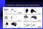 lokalizace n kter ch typ bolest hlavy
