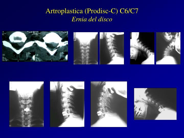 Artroplastica (Prodisc-C) C6/C7