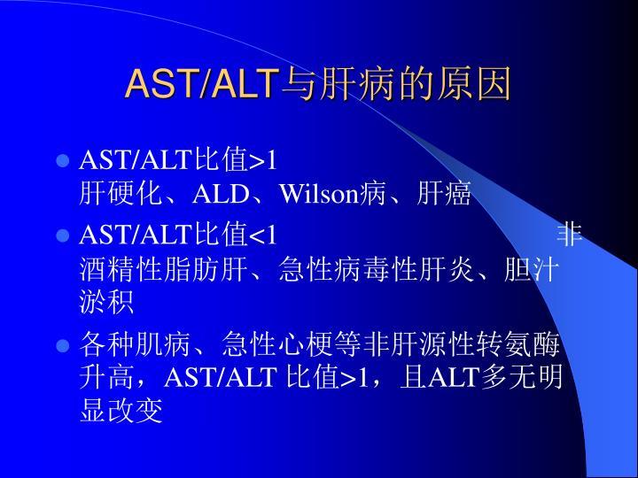 AST/ALT