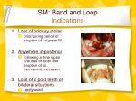 sm band and loop indications