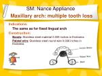 sm nance appliance maxillary arch multiple tooth loss