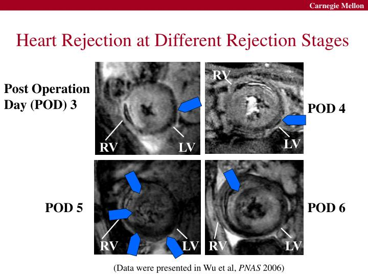 Heart Rejection at Different Rejection Stages