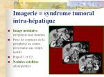 imagerie syndrome tumoral intra h patique