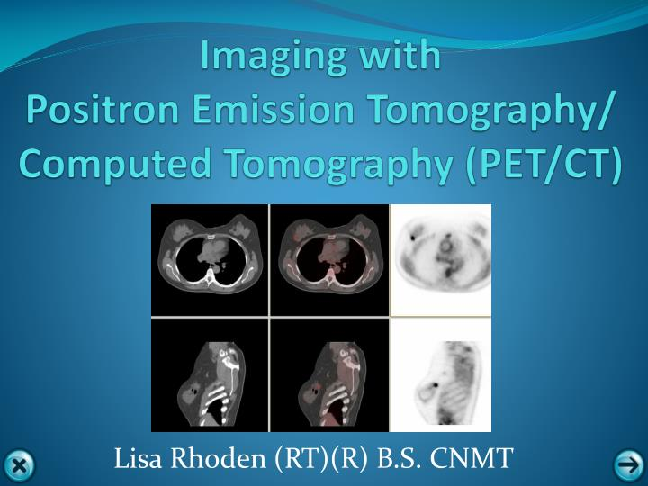 imaging with positron emission tomography computed tomography pet ct n.