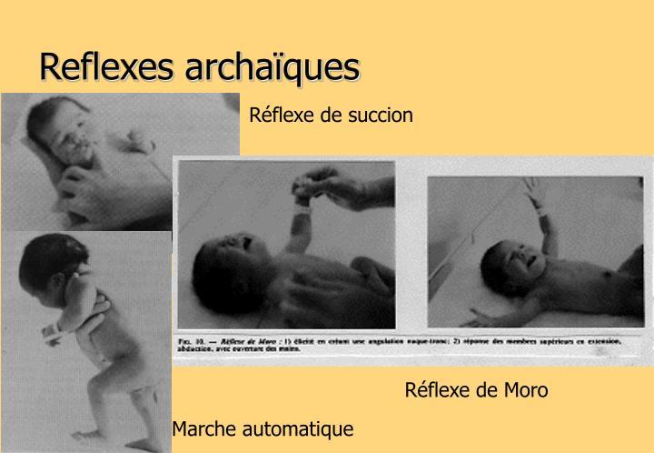Reflexes archaïques